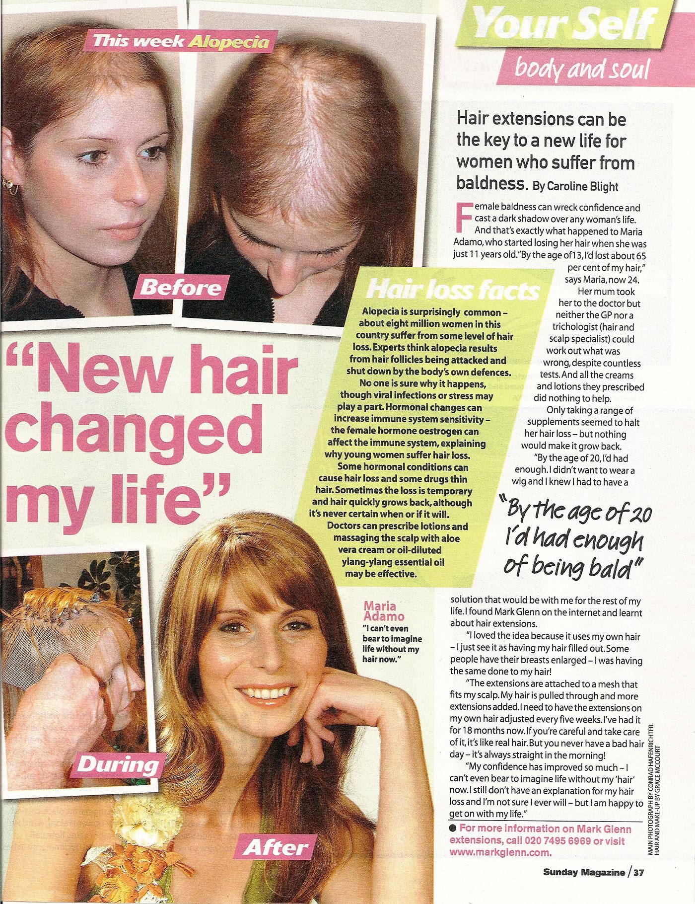 News of the World - 'New Hair at Mark Glenn Changed My Life' - Alopecia