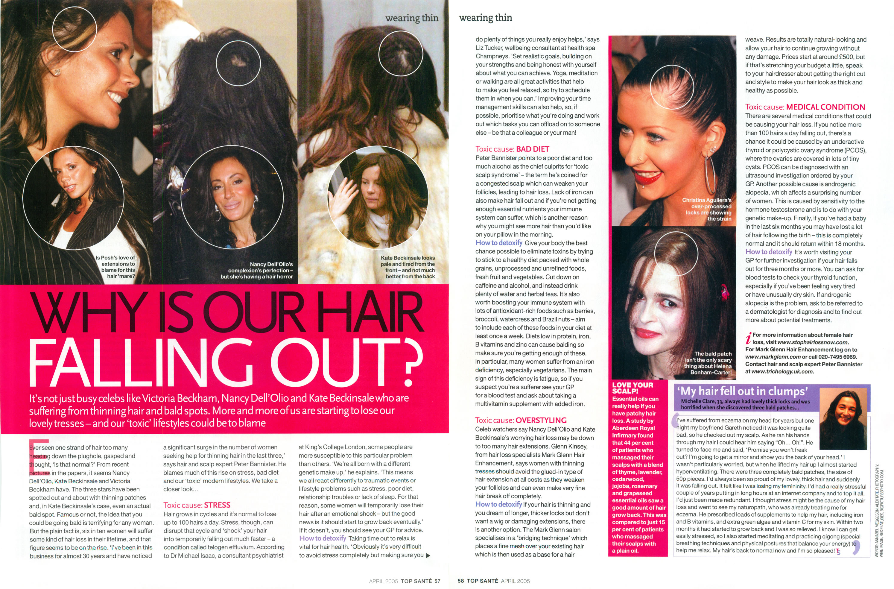 'Why is our hair falling out?' - Top Sante featuring Mark Glenn Hair Enhancement