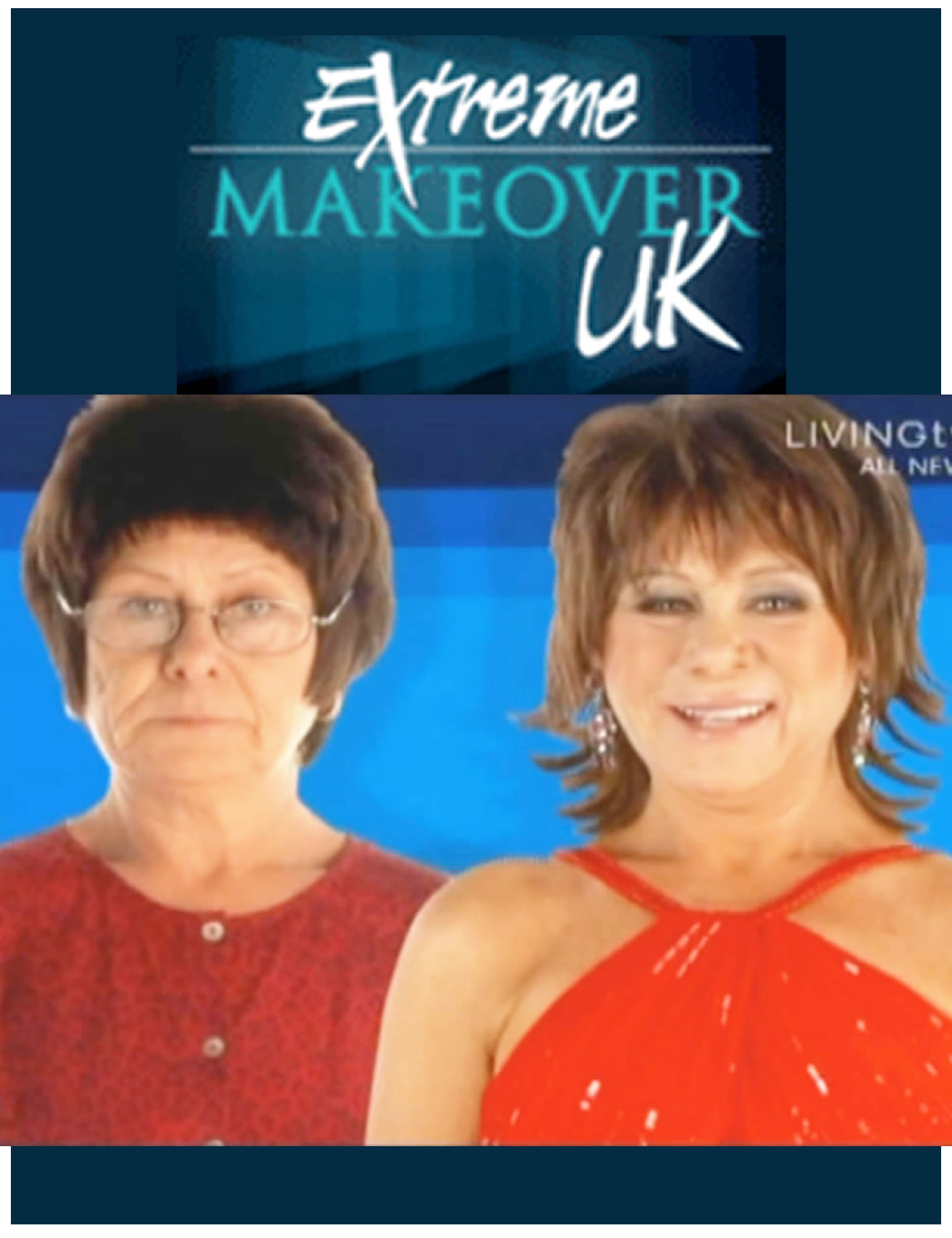 Extreme Makeover UK TV - from Hair Loss Wig to MG's Kinsey System