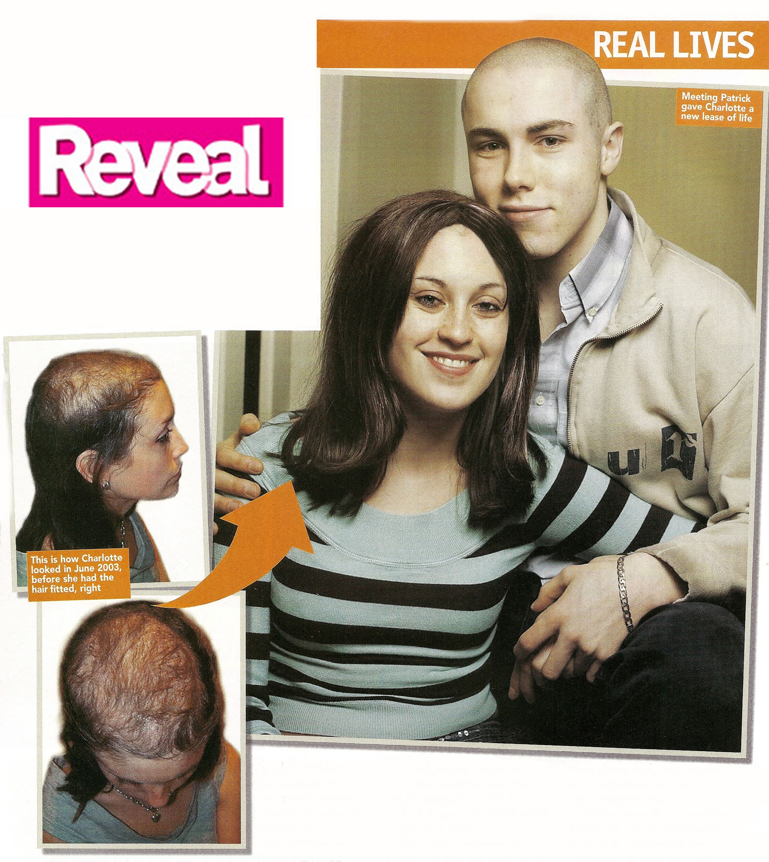 Trichotillomania - Before and After Mark Glenn's Kinsey System hair extensions - Reveal Magazine