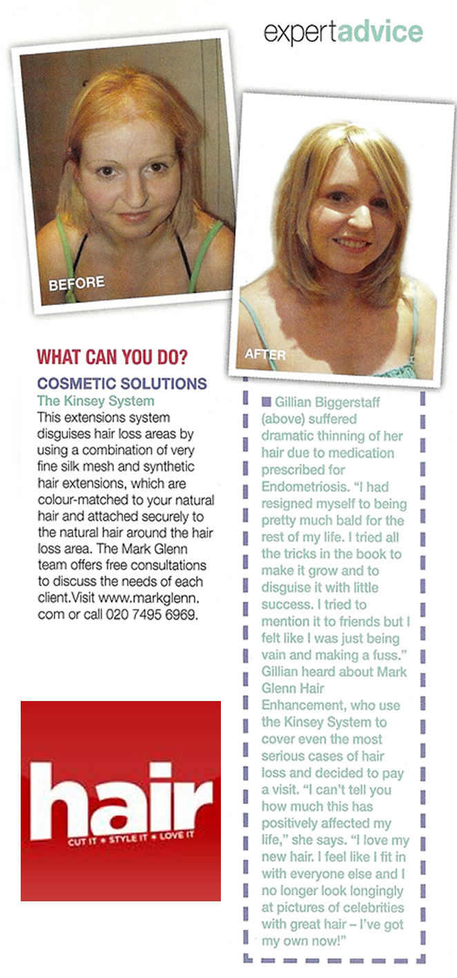 Hair Magazine - 'Coping with female hair loss'