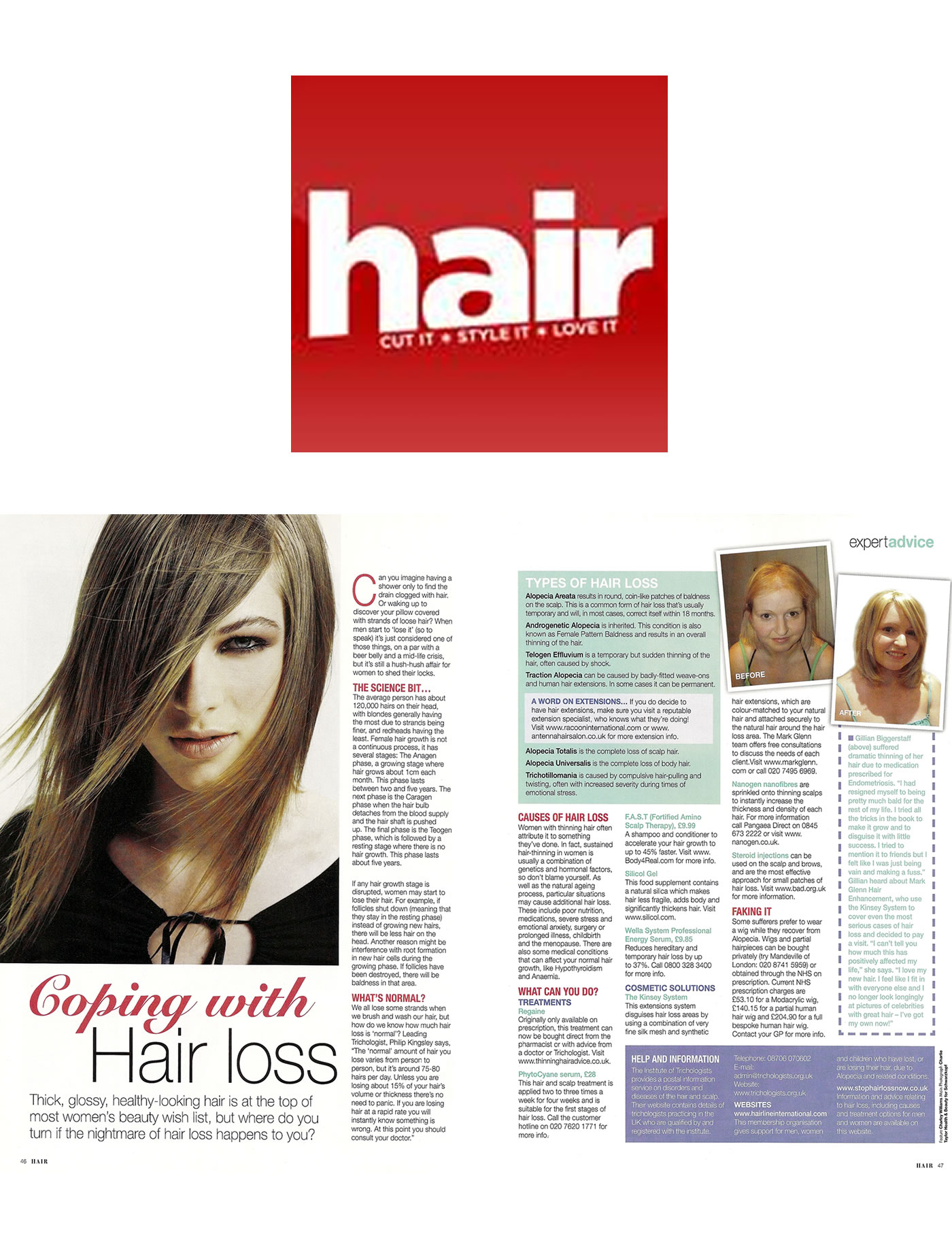 'Coping with hair loss' - Hair Magazine recommends and features MG's Kinsey System