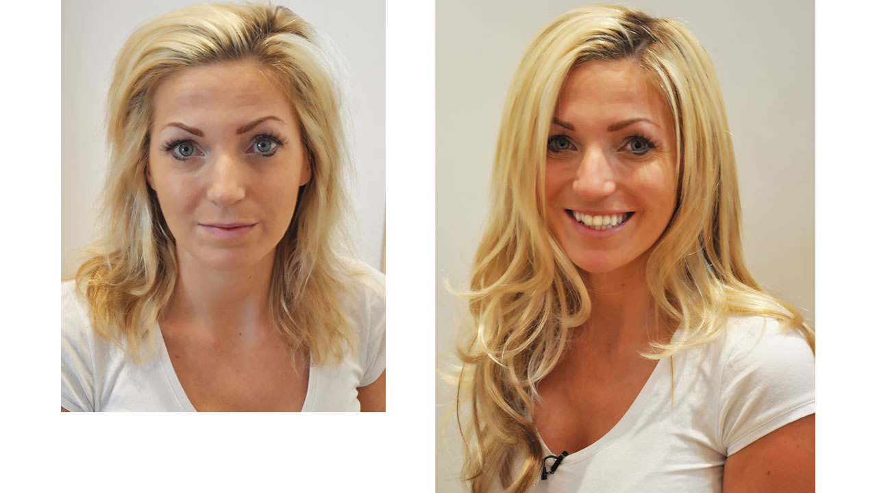 Bleach damaged hair - before and after hair extensions pictures - Mark Glenn