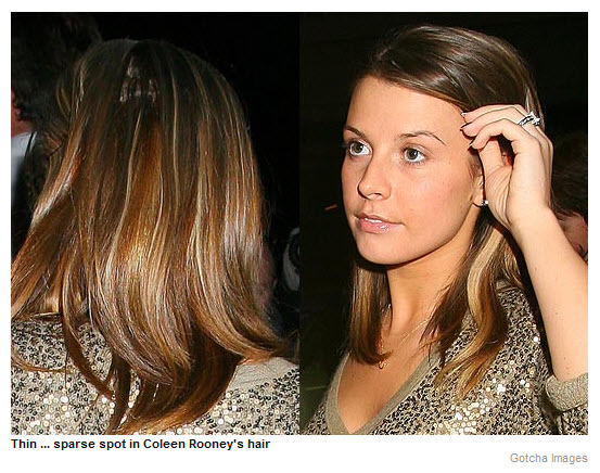 Thin... sparse spot in Coleen Rooney's hair