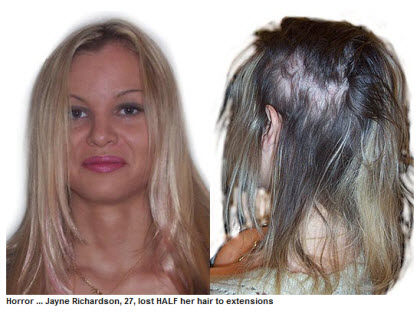Jayne Richardson - how Mark Glenn cosmetically repaired the damage after she lost half her hair to human hair extensions